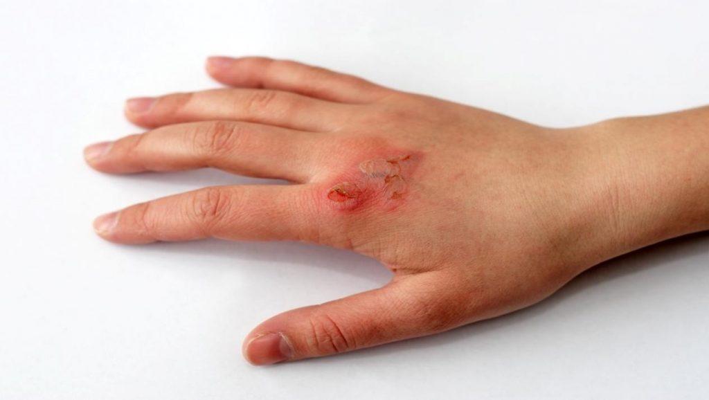 إزالة أثار الجروح.. وصفات منزلية