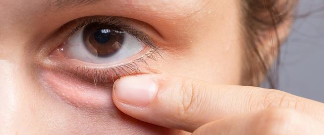 وصفات منزلية لعلاج انتفاخ تحت العين